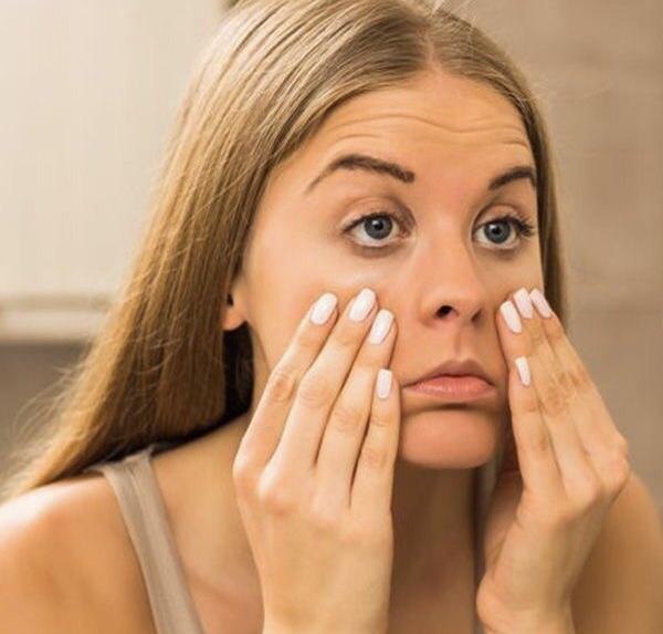 Cómo eliminar las ojeras y bolsas debajo de los ojos - remedios farmacéuticos